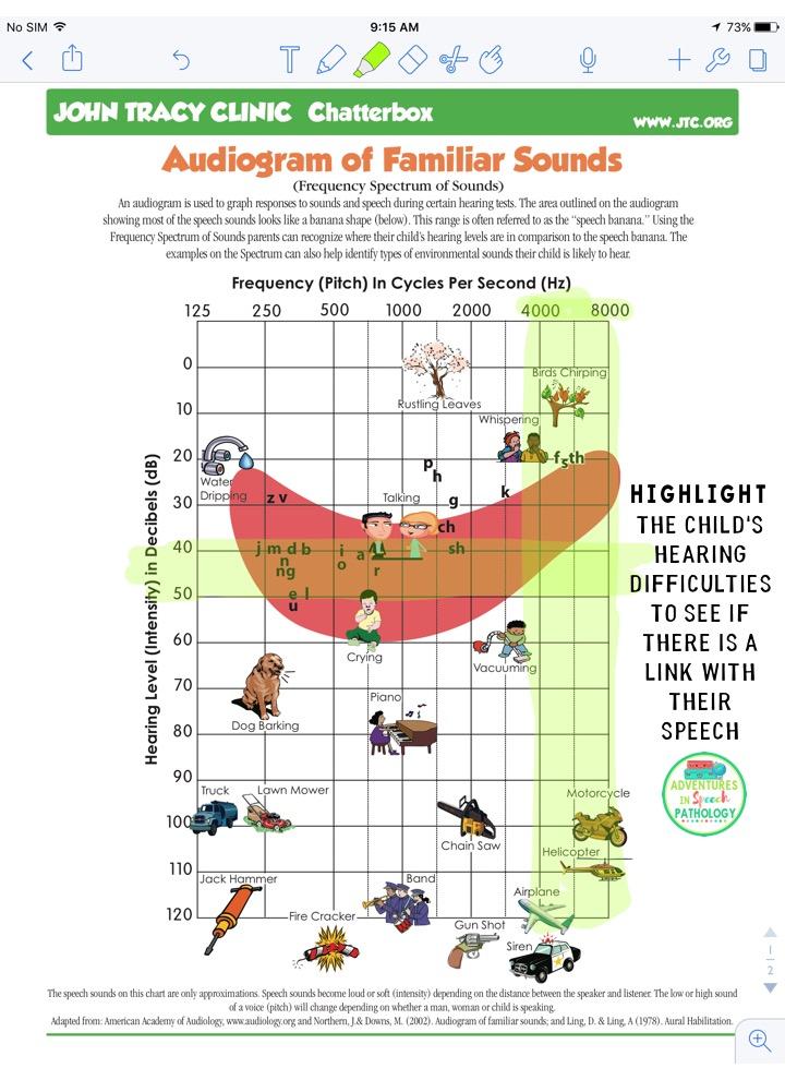 Audiogram - speech link